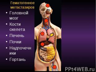 Гематогенное метастазирование Головной мозг Кости скелета Печень Почки Надпочечн