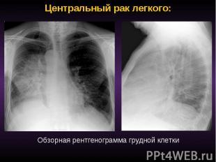 Центральный рак легкого: Обзорная рентгенограмма грудной клетки