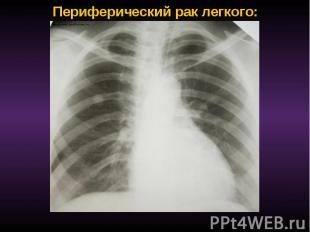 Периферический рак легкого: