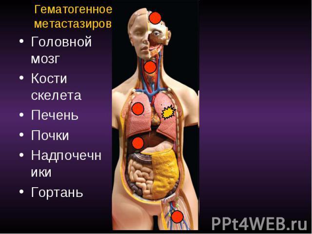 Гематогенное метастазирование Головной мозг Кости скелета Печень Почки Надпочечники Гортань