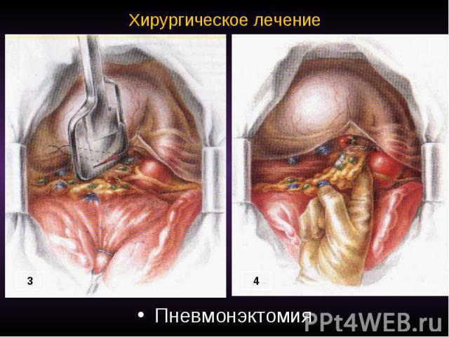 Хирургическое лечение Пневмонэктомия
