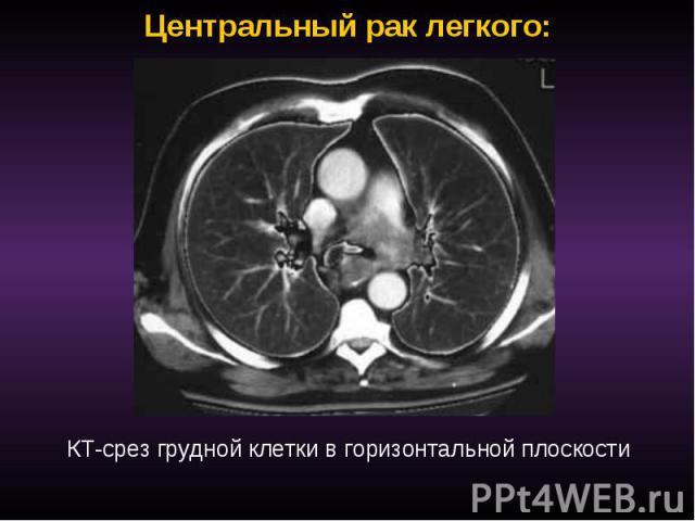 Центральный рак легкого: КТ-срез грудной клетки в горизонтальной плоскости