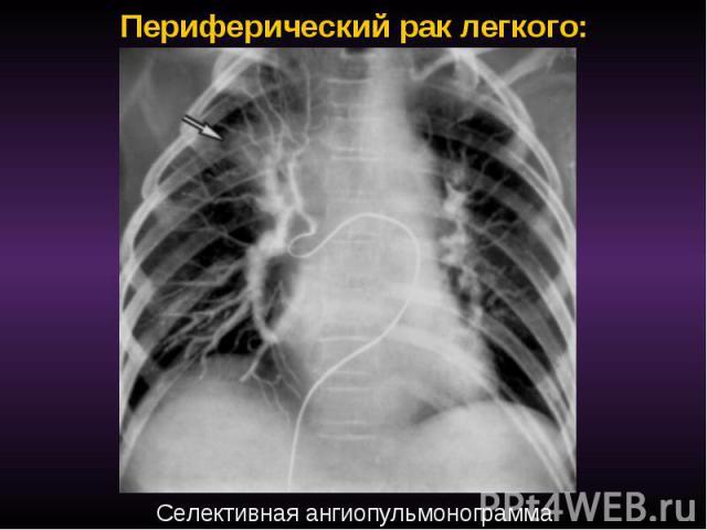 Периферический рак легкого: Селективная ангиопульмонограмма