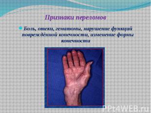Признаки переломов Боль, отеки, гематомы, нарушение функций повреждённой конечно