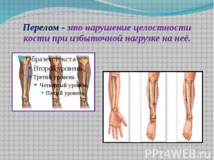 Перелом - это нарушение целостности кости при избыточной нагрузке на неё.