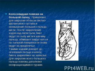 Колосовидная повязка на большой палец . Применяют для закрытия области пястно-фа