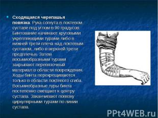 Сходящаяся черепашья повязка. Рука согнута в локтевом суставе под углом в 90 гра
