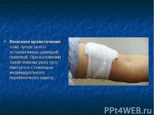 Венозное кровотечение тоже лучше всего останавливать давящей повязкой. При налож