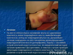 ЛечениеНа месте обязательное наложение жгута на сдавленную конечность выше повре