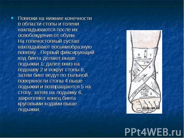 Повязки на нижние конечности в области стопы и голени накладываются после их освобождения от обуви.На голеностопный сустав накладывают восьмиобразную повязку . Первый фиксирующий ход бинта делают выше лодыжки 1, далее вниз на подошву 2 и вокруг стоп…