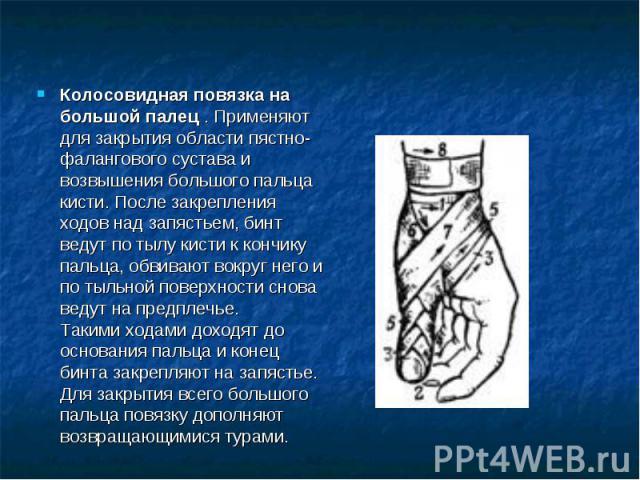 Колосовидная повязка на большой палец . Применяют для закрытия области пястно-фалангового сустава и возвышения большого пальца кисти. После закрепления ходов над запястьем, бинт ведут по тылу кисти к кончику пальца, обвивают вокруг него и по тыльной…