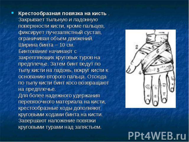 Крестообразная повязка на кисть . Закрывает тыльную и ладонную поверхности кисти, кроме пальцев, фиксирует лучезапястный сустав, ограничивая объем движений. Ширина бинта – 10 см.Бинтование начинают с закрепляющих круговых туров на предплечье. Затем …