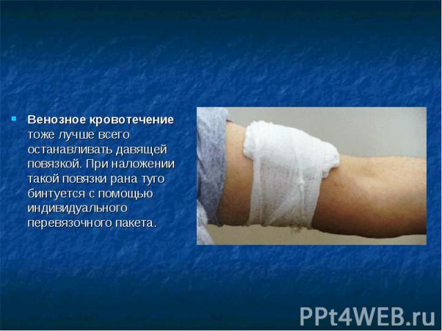Венозное кровотечение тоже лучше всего останавливать давящей повязкой. При наложении такой повязки рана туго бинтуется с помощью индивидуального перевязочного пакета.