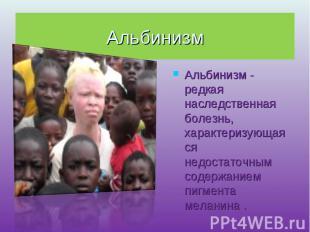 Альбинизм Альбинизм - редкая наследственная болезнь, характеризующаяся недостато