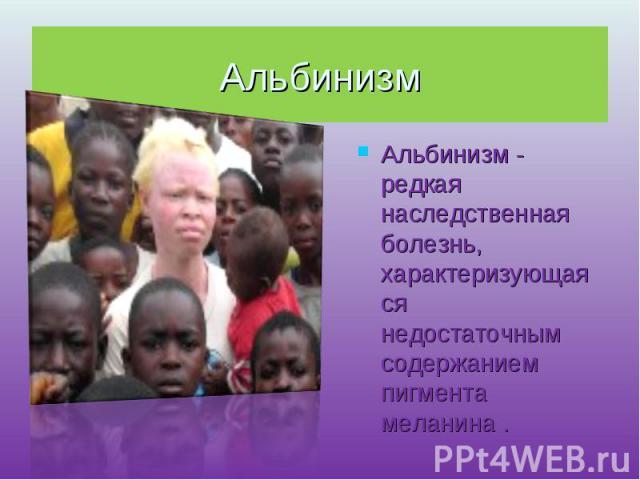 Альбинизм Альбинизм - редкая наследственная болезнь, характеризующаяся недостаточным содержанием пигмента меланина .