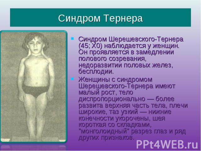 Синдром ТернераСиндром Шерешевского-Тернера (45; Х0) наблюдается у женщин. Он проявляется в замедлении полового созревания, недоразвитии половых желез, бесплодии.Женщины с синдромом Шерешевского-Тернера имеют малый рост, тело диспропорционально — бо…