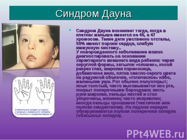 Синдром Дауна Синдром Дауна возникает тогда, когда в клетках малыша имеется не 46, а 47 хромосом. Такие дети умственно отсталы, 50% имеют пороки сердца, слабую иммунную систему.. У новорожденного заболевание можно диагностировать на основании характ…