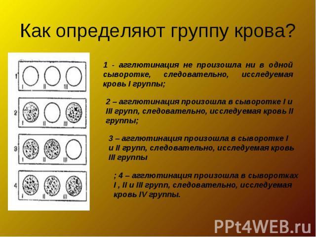 Как определяют группу крова?1 - агглютинация не произошла ни в одной сыворотке, следовательно, исследуемая кровь I группы;2 – агглютинация произошла в сыворотке I и III групп, следовательно, исследуемая кровь II группы; 3 – агглютинация произошла в …