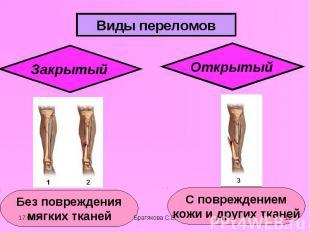 Виды переломовЗакрытый Без повреждения мягких тканей Открытый С повреждением кож