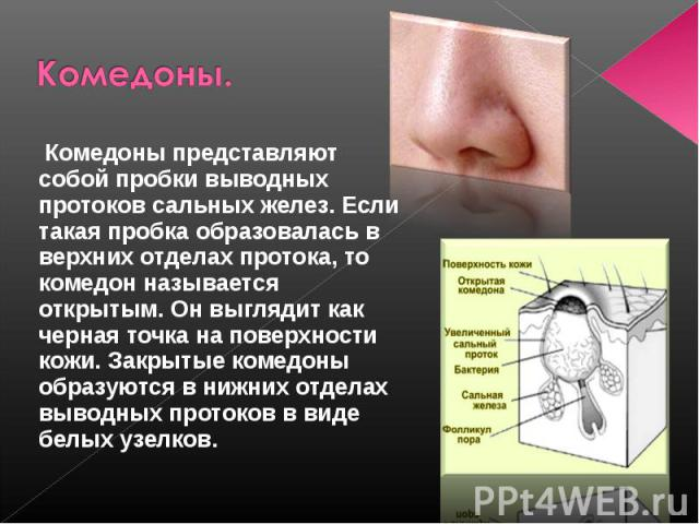 Комедоны. Комедоны представляют собой пробки выводных протоков сальных желез. Если такая пробка образовалась в верхних отделах протока, то комедон называется открытым. Он выглядит как черная точка на поверхности кожи. Закрытые комедоны образуются в …