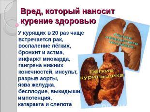 Вред, который наносит курение здоровью У курящих в 20 раз чаще встречается рак,