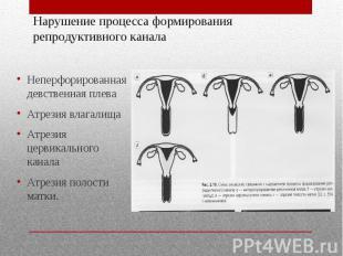 Нарушение процесса формирования репродуктивного канала Неперфорированная девстве