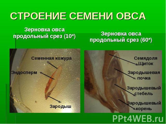 Зерновка овса продольный срез (10*) Зерновка овса продольный срез (10*)