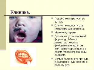 Подъём температуры до 37-41ССлизистая полости рта гиперемирована,отёчна.Мелкие п