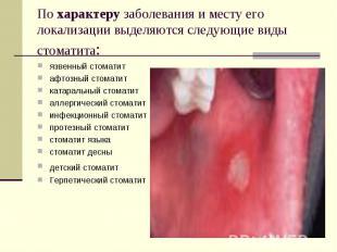 По характеру заболевания и месту его локализации выделяются следующие виды стома