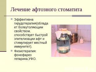 Эффективна гирудотерапия(обладает болеутоляющим свойством, способствует быстрой