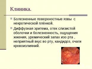 Болезненные поверхностные язвы с некротической плёнкой.Диффузная эритема, отек с