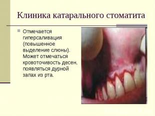 Отмечается гиперсаливация (повышенное выделение слюны). Может отмечаться кровото