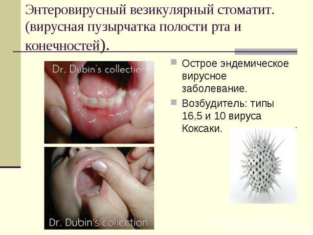 Пузырчатка у детей причины возникновения симптомы и лечение