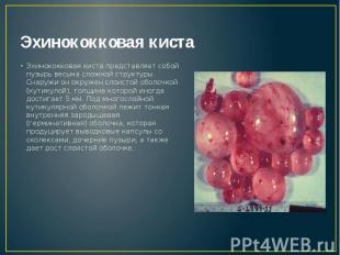 Эхинококковая киста Эхинококковая киста представляет собой пузырь весьма сложной