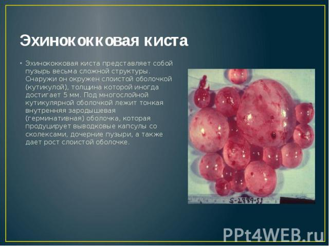 Эхинококковая киста Эхинококковая киста представляет собой пузырь весьма сложной структуры. Снаружи он окружен слоистой оболочкой (кутикулой), толщина которой иногда достигает 5 мм. Под многослойной кутикулярной оболочкой лежит тонкая внутренняя зар…