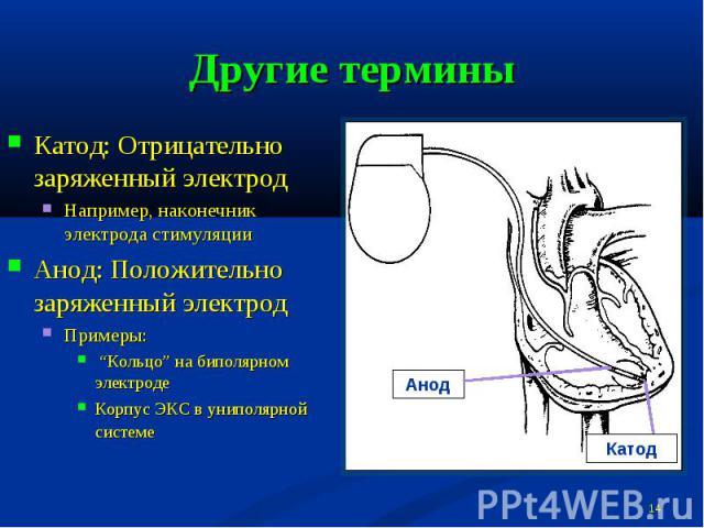 """Другие термины Катод: Отрицательно заряженный электродНапример, наконечник электрода стимуляцииАнод: Положительно заряженный электродПримеры: """"Кольцо"""" на биполярном электродеКорпус ЭКС в униполярной системе"""