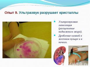 Опыт 9. Ультразвук разрушает кристаллы Ультразвуковая липосакция (расщепление по