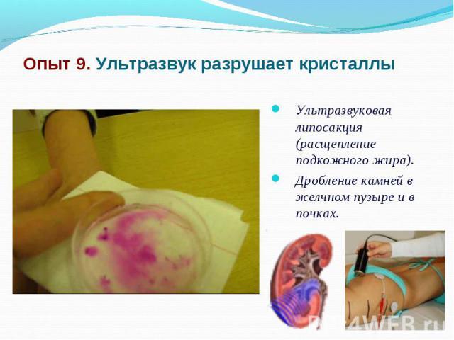 Опыт 9. Ультразвук разрушает кристаллы Ультразвуковая липосакция (расщепление подкожного жира).Дробление камней в желчном пузыре и в почках.