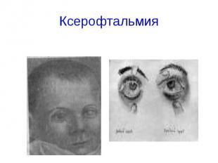 Ксерофтальмия
