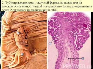 2- Тубулярные аденомы - округлой формы, на ножке или на плоском основании, с гла