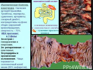 Ишемическая болезнь кишечника. Окклюзия артерий брыжейки. Тромбозы, перекруты, с