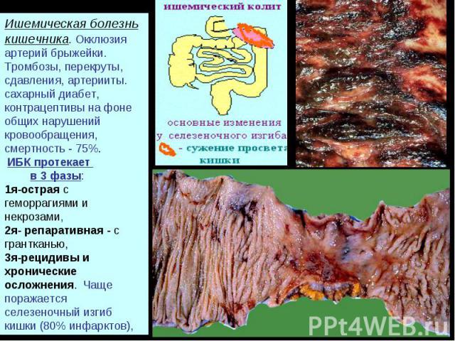 Ишемическая болезнь кишечника. Окклюзия артерий брыжейки. Тромбозы, перекруты, сдавления, артерииты. сахарный диабет, контрацептивы на фоне общих нарушений кровообращения, смертность - 75%. ИБК протекает в 3 фазы: 1я-острая с геморрагиями и некрозам…