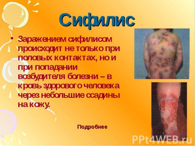 Сифилис Заражением сифилисом происходит не только при половых контактах, но и при попадании возбудителя болезни – в кровь здорового человека через небольшие ссадины на кожу.
