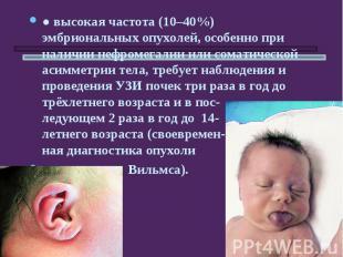 ●высокая частота (10–40%) эмбриональных опухолей, особенно при наличии нефромег