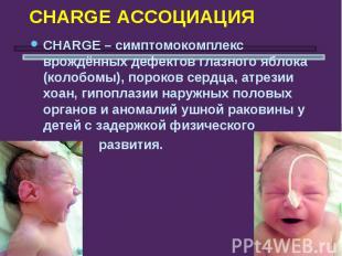 CHARGE АССОЦИАЦИЯ СHARGE – симптомокомплекс врождённых дефектов глазного яблока