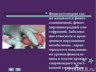 Фенилкетонурия так-же называется фенил-аланинемией, фенил-пировиноградной оли-го