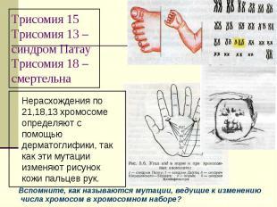Трисомия 15Трисомия 13 –синдром ПатауТрисомия 18 – смертельна Нерасхождения по 2