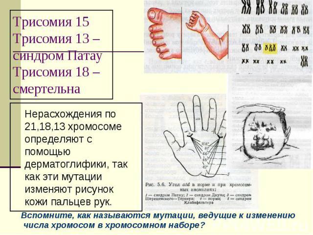 Трисомия 15Трисомия 13 –синдром ПатауТрисомия 18 – смертельна Нерасхождения по 21,18,13 хромосоме определяют с помощью дерматоглифики, так как эти мутации изменяют рисунок кожи пальцев рук. Вспомните, как называются мутации, ведущие к изменению числ…
