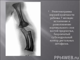 Рентгенограмма верхней конечности ребенка 7 месяцев: истончение и разволокнение