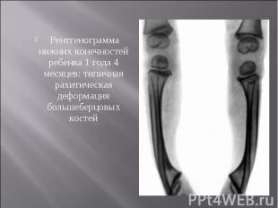 Рентгенограмма нижних конечностей ребенка 1 года 4 месяцев: типичная рахитическа